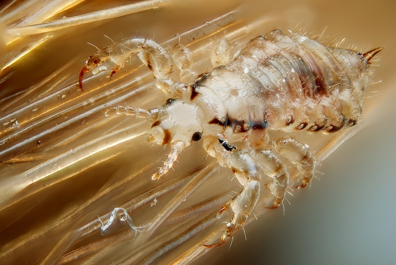 Zoomed image of head lice on hair